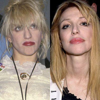 Birbiri ardına yaptırdığı operasyonlarla artık tanınmaz halde olan Courtney Love, bugün görenleri şaşkına çeviriyor.